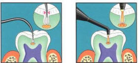 Northeast Portland Dentist Dr. Daby uses Diagnodent Laser Cavity Detection